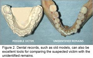 Determining Identity Through Dental Forensics Dimensions Of Dental Hygiene